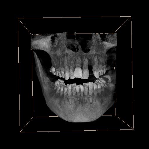牙片机PLX3000A