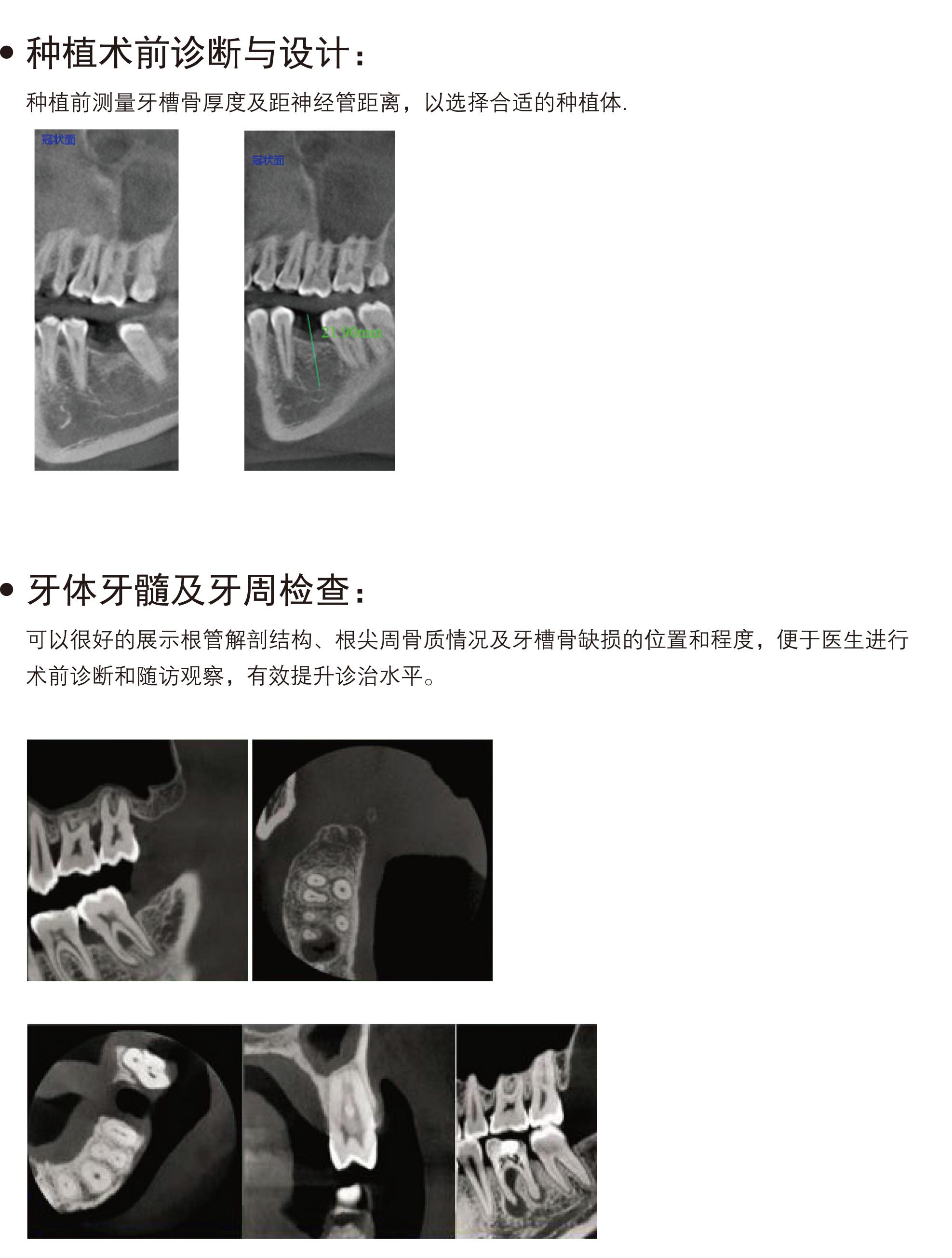 牙科全景机PLX3000A
